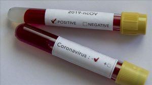 تست-کرونا-و-تشخیص-ویروس-کرونا